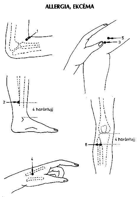 gyógyított visszér akupunktúrával visszér duzzadt láb