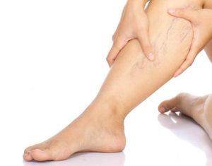 hagyományos orvoslás a visszerek a lábaknál