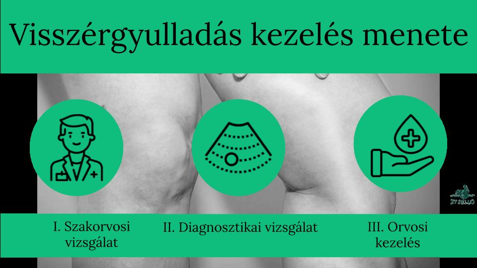 kórház az ufa visszérgyulladásának kezelésére)