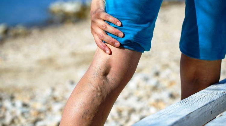 a lábak visszér.nemzeti kezelés