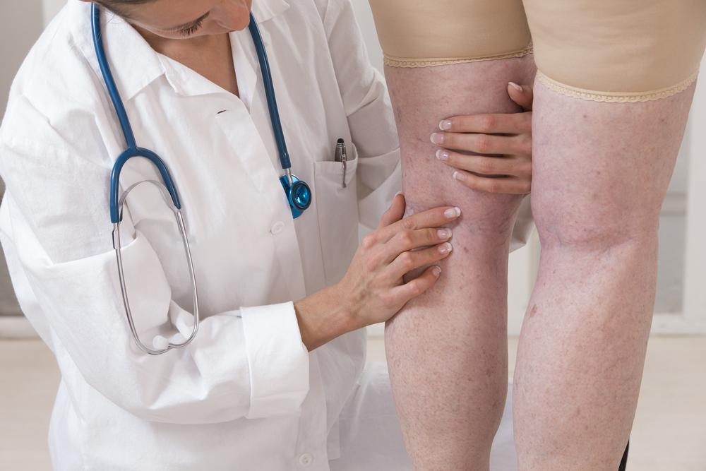 bőrbetegségek a lábakon visszér)