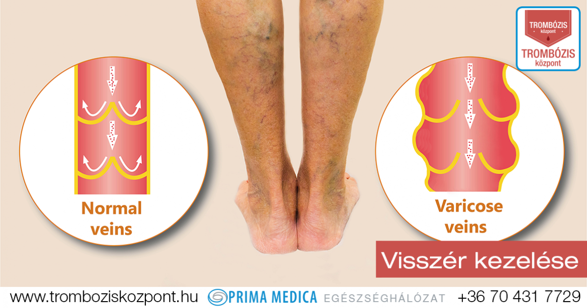 visszér a lábakban tünetek kezelése