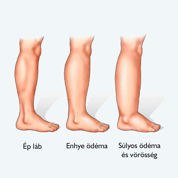 a lábak visszértágulata műtét előtt és után)