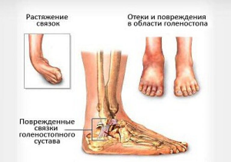 aloe receptek a varikózis elleni hagyományos orvosláshoz)