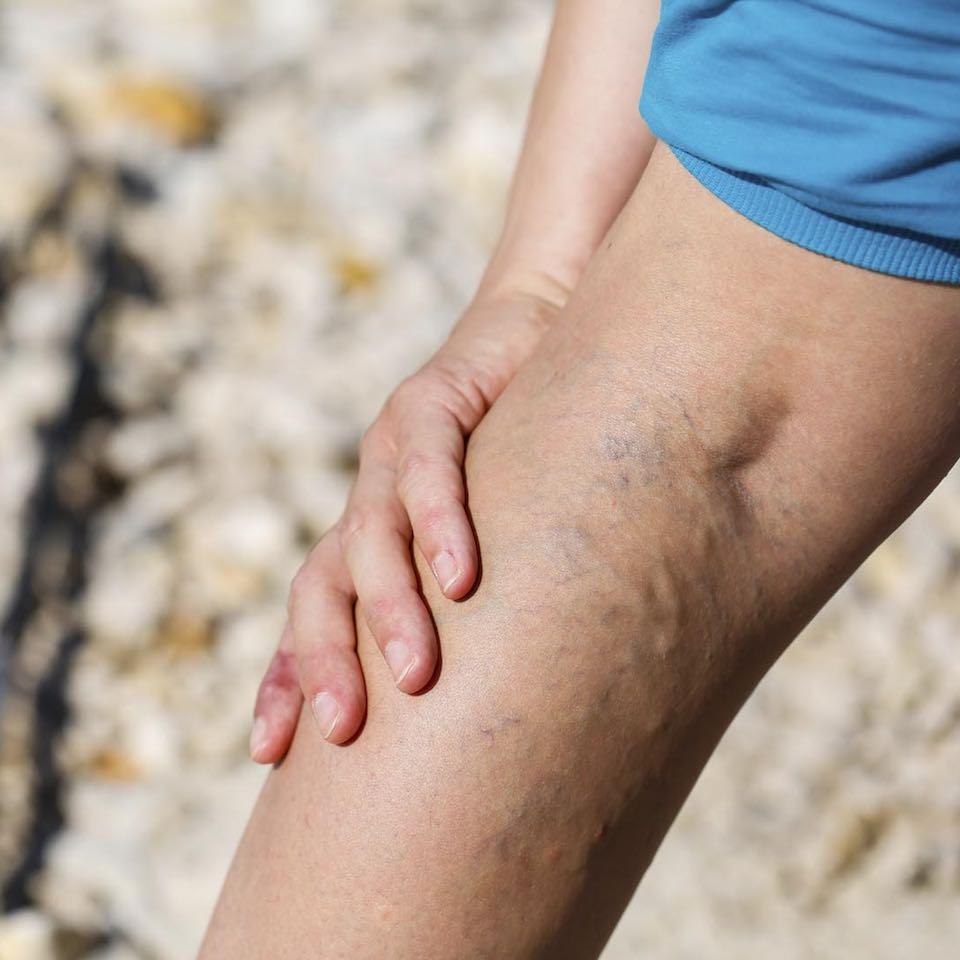 a lábkiütésen visszér gyakorlatsor a visszér kezelésére