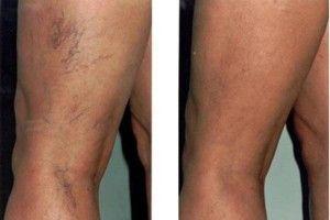 a varikózis kezelése után fáj a láb