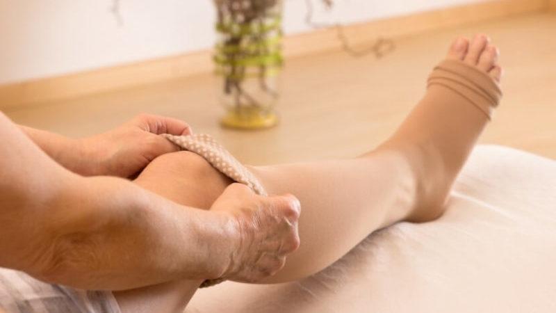 szövődmények a varikózis eltávolítására szolgáló műtét után kenőcsök a lábakon található visszér csillagok ellen