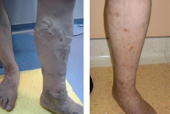 fotó a visszér kezelése előtt és után)