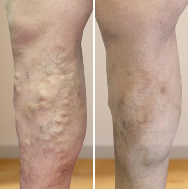 visszér eltávolítása a lábakon rehabilitáció