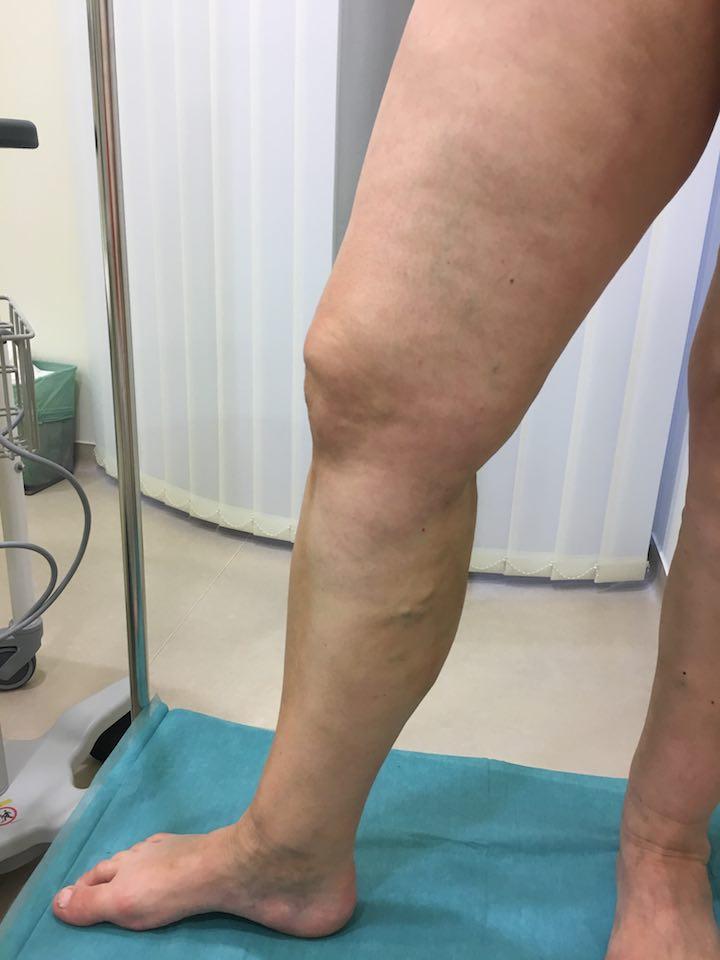 egy hónappal a visszeres műtét után)