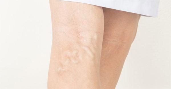 a lábak alsó végtagjainak visszér