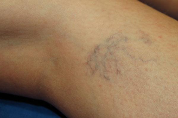 bőr kezelés visszér kezelésére)