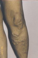 A kezeletlen visszeres láb akár súlyos következményekkel is járhat
