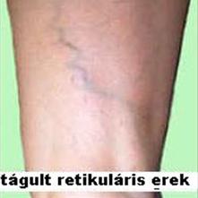 retikuláris visszér kezelésére