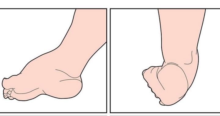 a varikózisos műtét után lábfejlődik