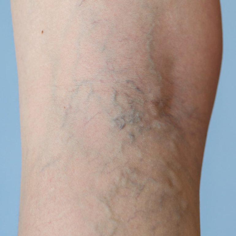 a comb és az alsó láb visszérje visszér kezelés fáj