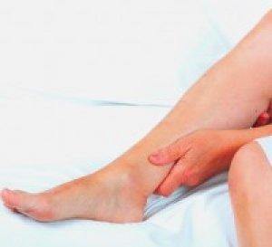 Véraláfutás a lábakon visszérrel