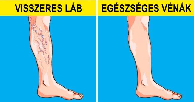 visszér a lábakban táplálkozás
