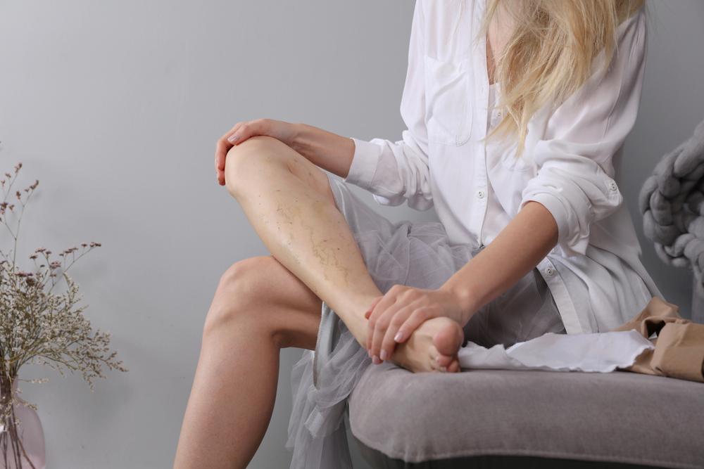 a visszér első tünetei a lábakon kezelés megszabadulni a visszerek férfiaknál