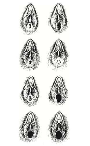 visszér a női szerveken