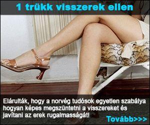 Sevcsenko-módszer visszér ellen - Varikozos kúpok a lábak kezelése