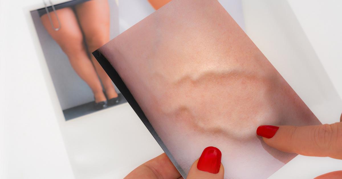 Szimpatika – Kirándulással megelőzhetjük a visszerek kialakulását