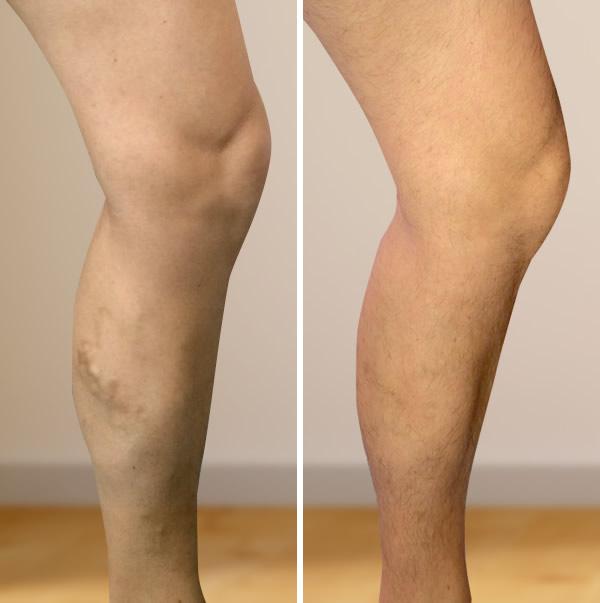 műtét a visszéren a lábakon lézerrel vagy