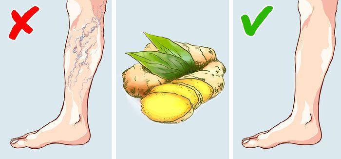 visszér kezelési költsége ben a comb és az alsó láb retikuláris visszerei
