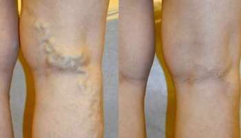 Tabletta ekcéma a lábán