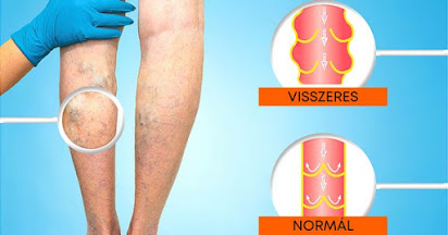Népi gyógymódok a visszér tromboflebitisz ellen