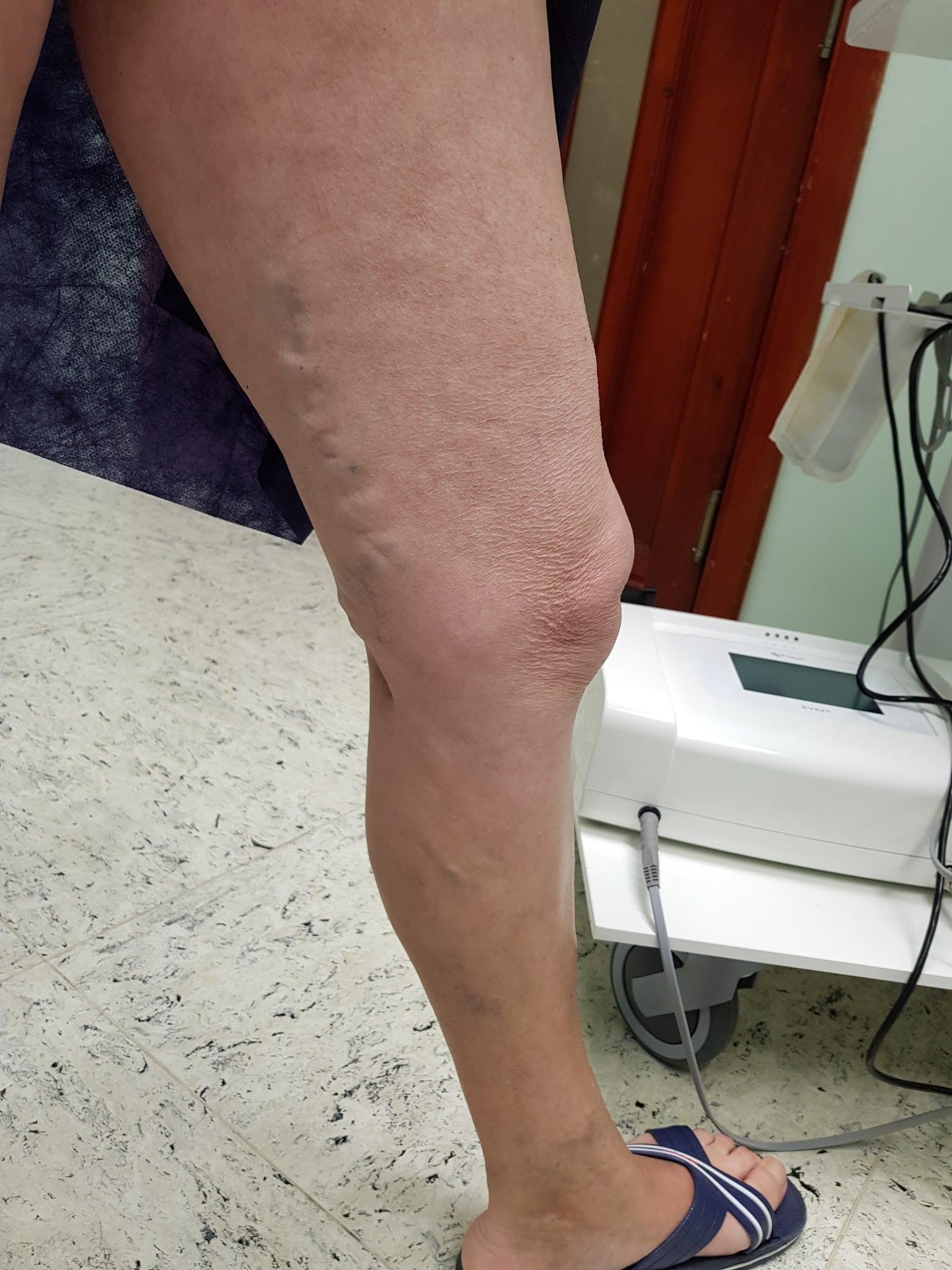 Seprűvénák kezelése