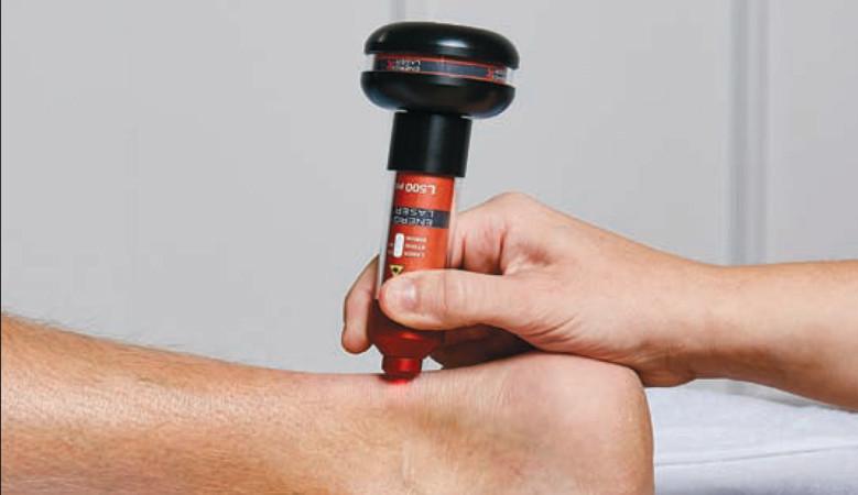 visszér lézeres terápiás gép