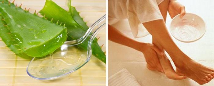 gyógyítsa meg a visszértágulatot propolissal