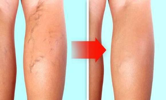 a lábak visszér kezelése időseknél)
