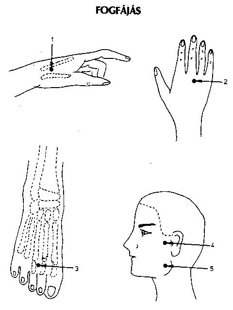 akupunktúrás pontok a visszerekből)