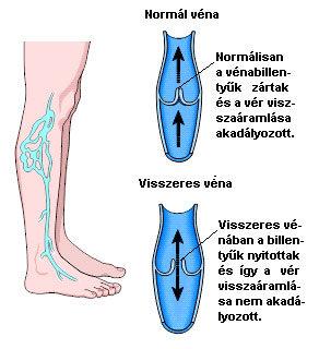 Visszérvonal: Információs vonal - Felületes vénák trombózisa
