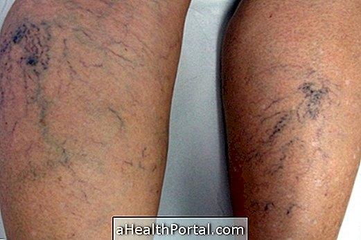 a lábak varikózisának szövődménye)