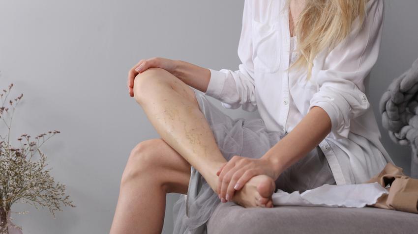 miért van szükségünk kompressziós harisnyára a visszerek esetén lábak visszér folyik