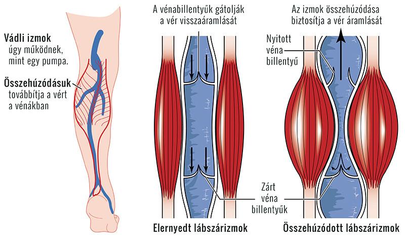 viszkethetnek-e a lábak visszérrel ászanák a lábak varikózisában