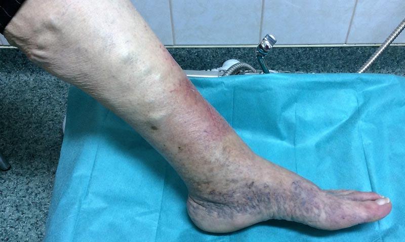 a lábakon lévő erek láthatók, nem visszerek