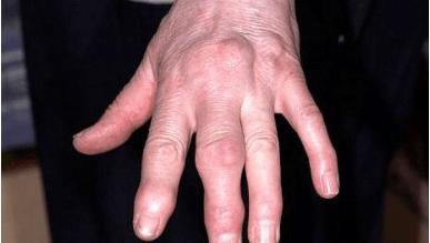 a kezek elzsibbadnak a visszerektől)