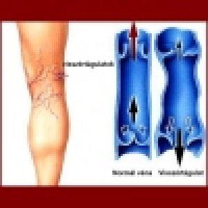 csökkentse a visszeres lábfájdalmat
