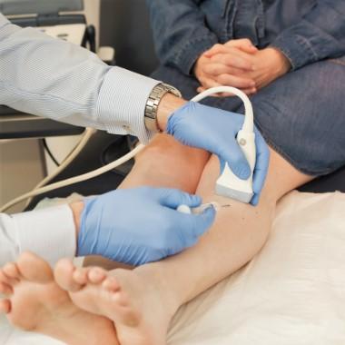 visszér kezelése orvos által