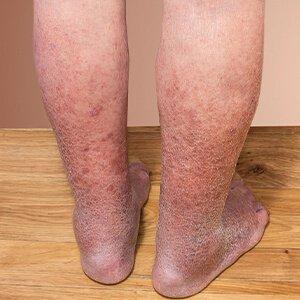 a lábak visszeres tüneteivel)