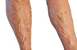 a lábakon lévő erek visszerek