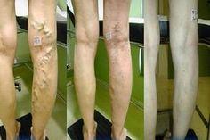 Dr.fitokup újjászületés homoktövis préslé 125 ml