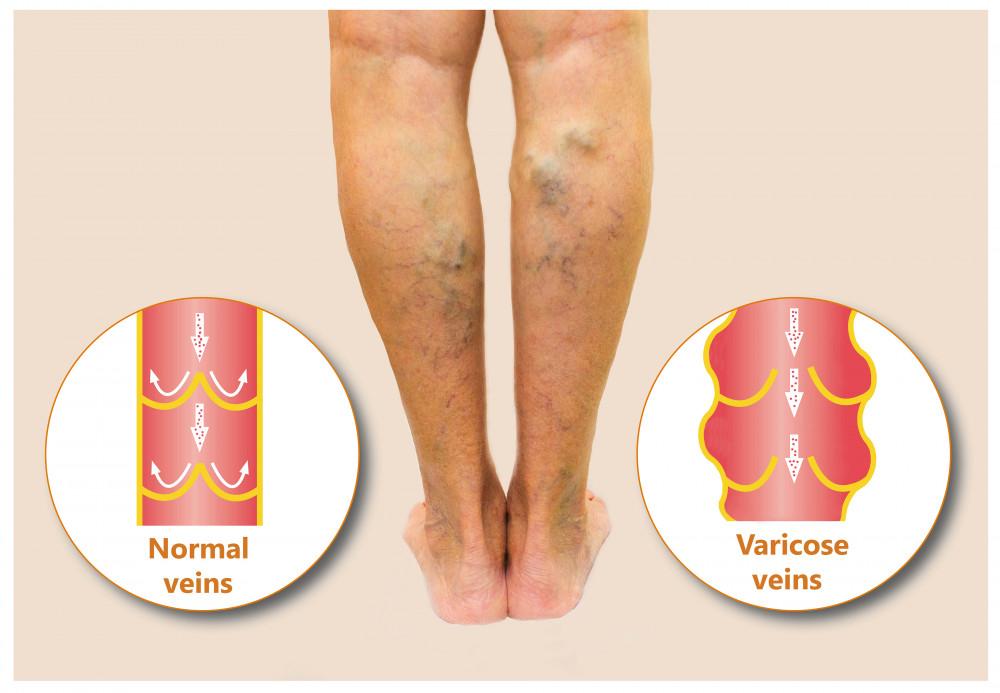 a lábak varikózisának szakaszai