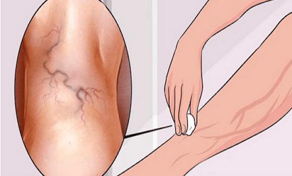 Herevisszérsérv (varicocele) – Dunapart Medical Magánrendelés