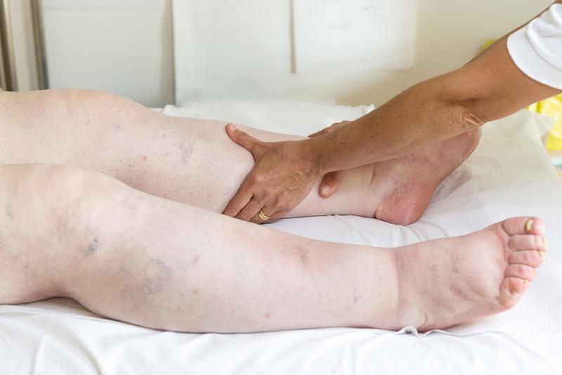 allergiás visszér kezelés visszérkezelés jó kenőccsel