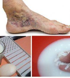 A visszér kezelése sós öntetekkel és fürdőkkel